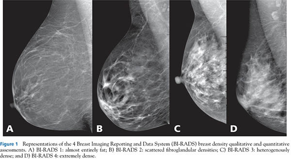 The Problem With Mandatory Breast Density Reporting Laws