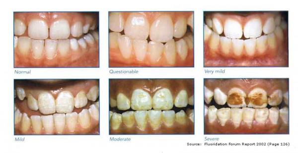 Image credit: Fluoridation Forum Report 2002.