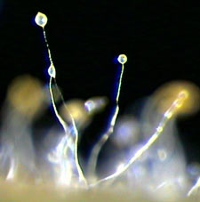 Fruiting stalks of dictyostelium (click for source)